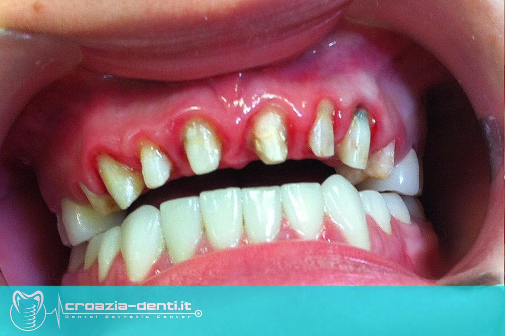 Denti limati