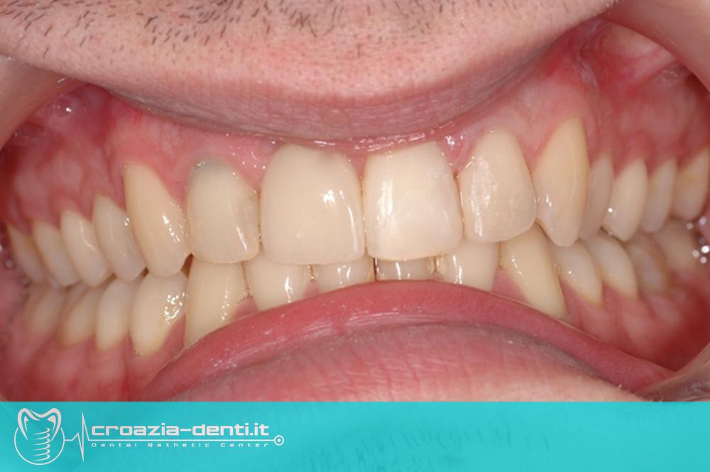 Impianto dentale su dente forntale con corona in zirconio