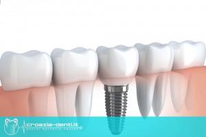 Implantologia dentale fatta da dottori specializzati in Croazia