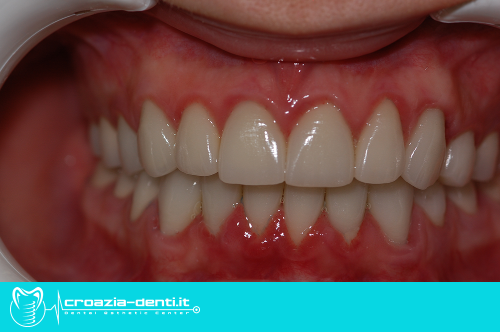 corone in metallo ceramica e zirconio